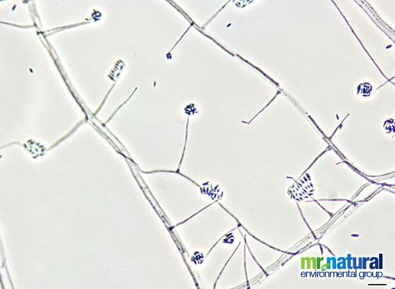 Acremonium spp mold